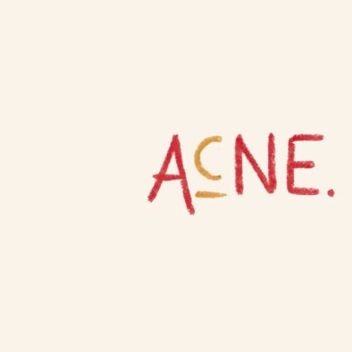 what causes acne